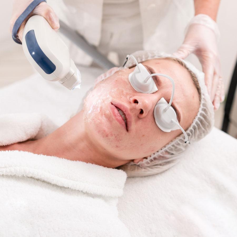 IPL Facial for Acne